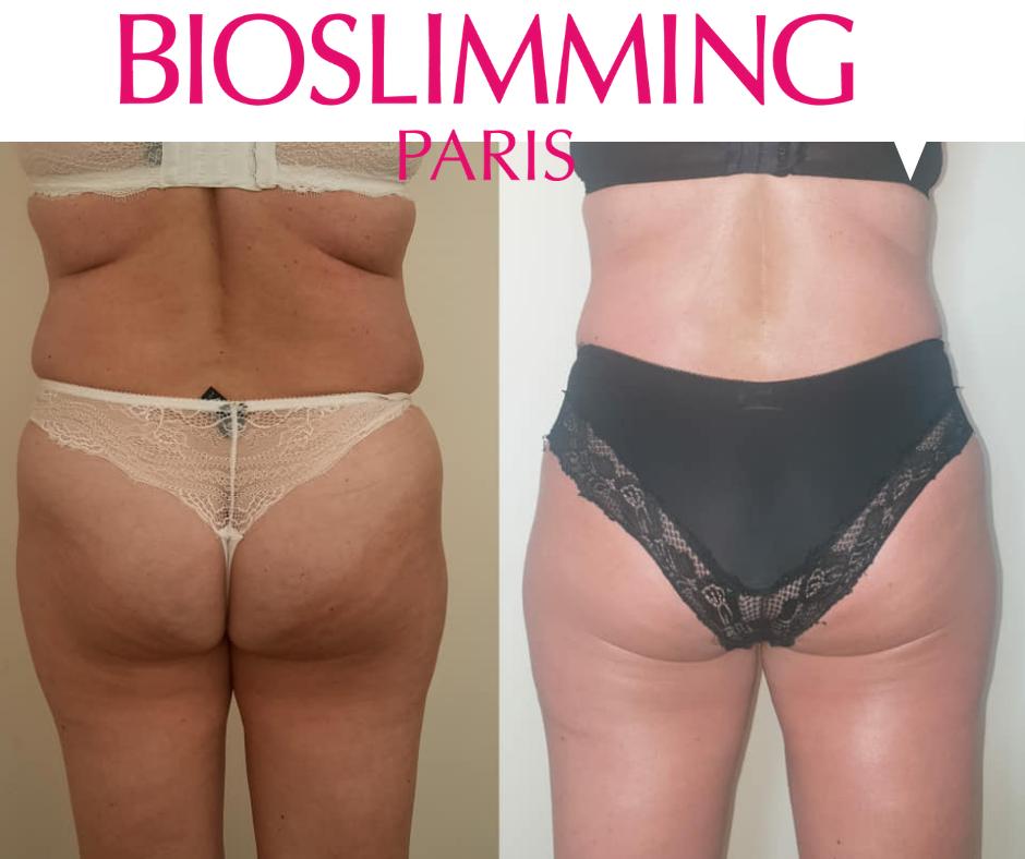 voor en na 5x rug ABC Bioslimming